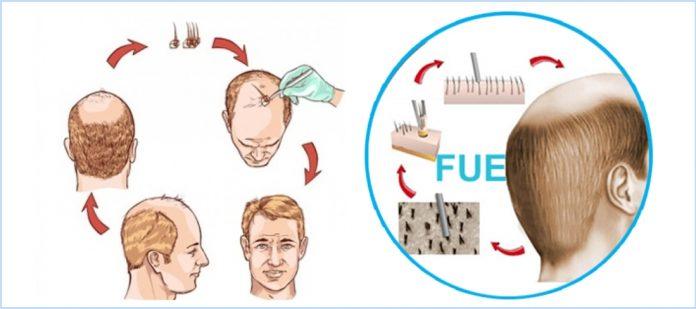 Follicular hair extraction