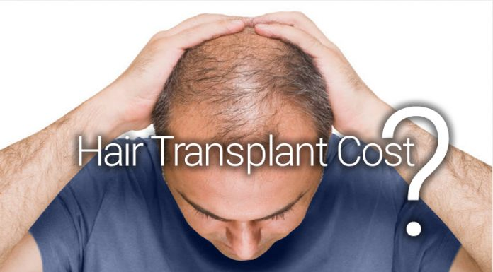 hair implants cost