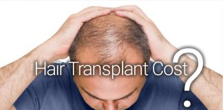 cheap hair transplant