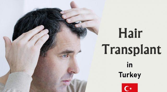 hair transplant prices in Turkey