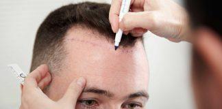 best hair transplant procedure