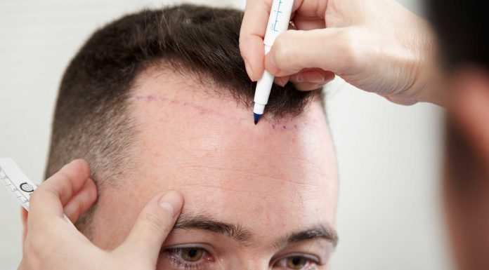 best hair transplant procedure