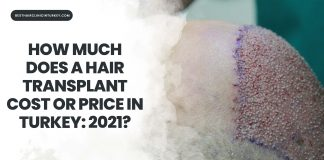 how much does a hair transplant cost or price in turkey