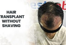 hair transplant without shaving